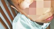 男童被狗咬13天后离世 专家:狂犬疫苗只能降低发病率