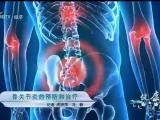 骨关节炎的预防和治疗-20210506